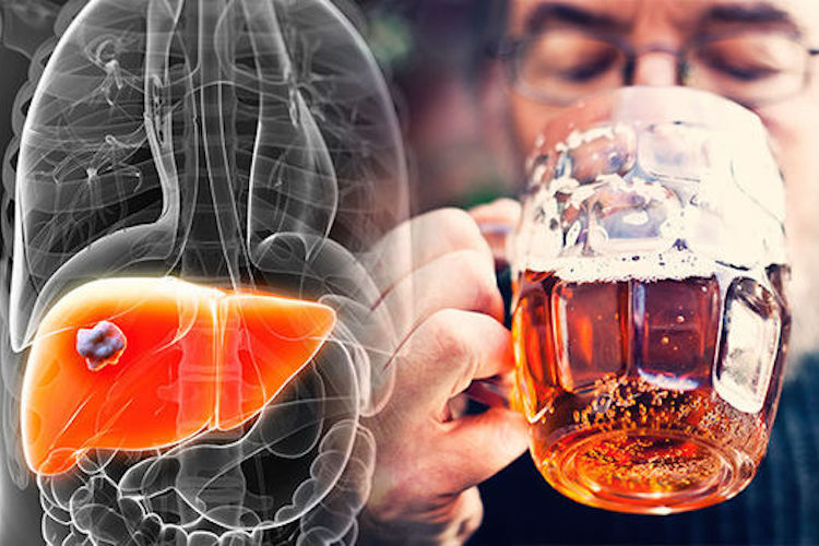LIVER DAMAGE IS A GROWING EPIDEMIC
