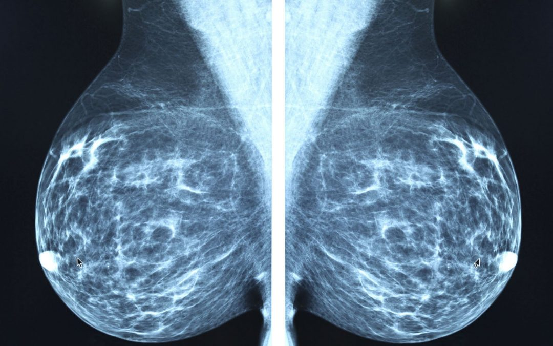 How X-Ray Mammography Is Accelerating The Epidemic of Cancer