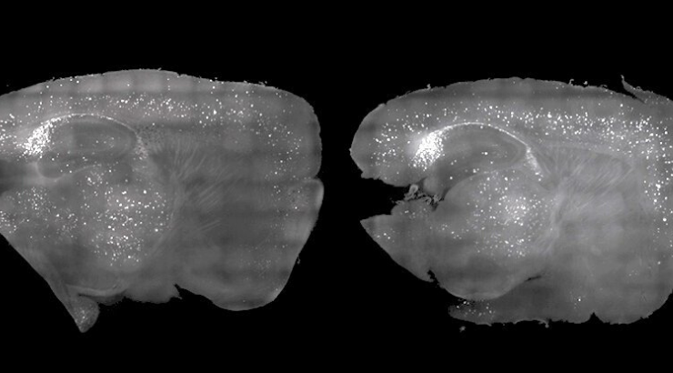 Scientists Cleared Alzheimer's Plaque From Mice Using Nothing but Light and Sound
